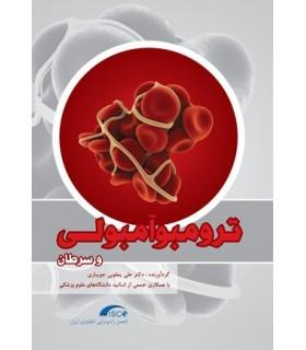 کتاب ترومبوآمبولی و سرطان